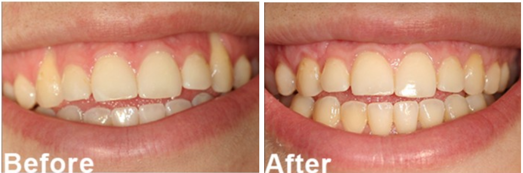 Gum Graft Before and After Photo| Receding Gums Baltimore Periodontics